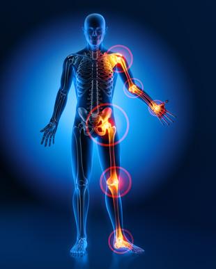 geheilt von arthrose